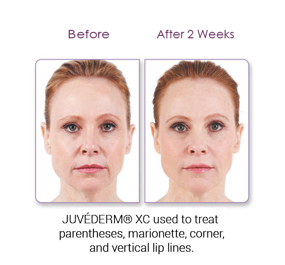 Denver Medical Spa and Skin Care Clinic Juvéderm jennifer