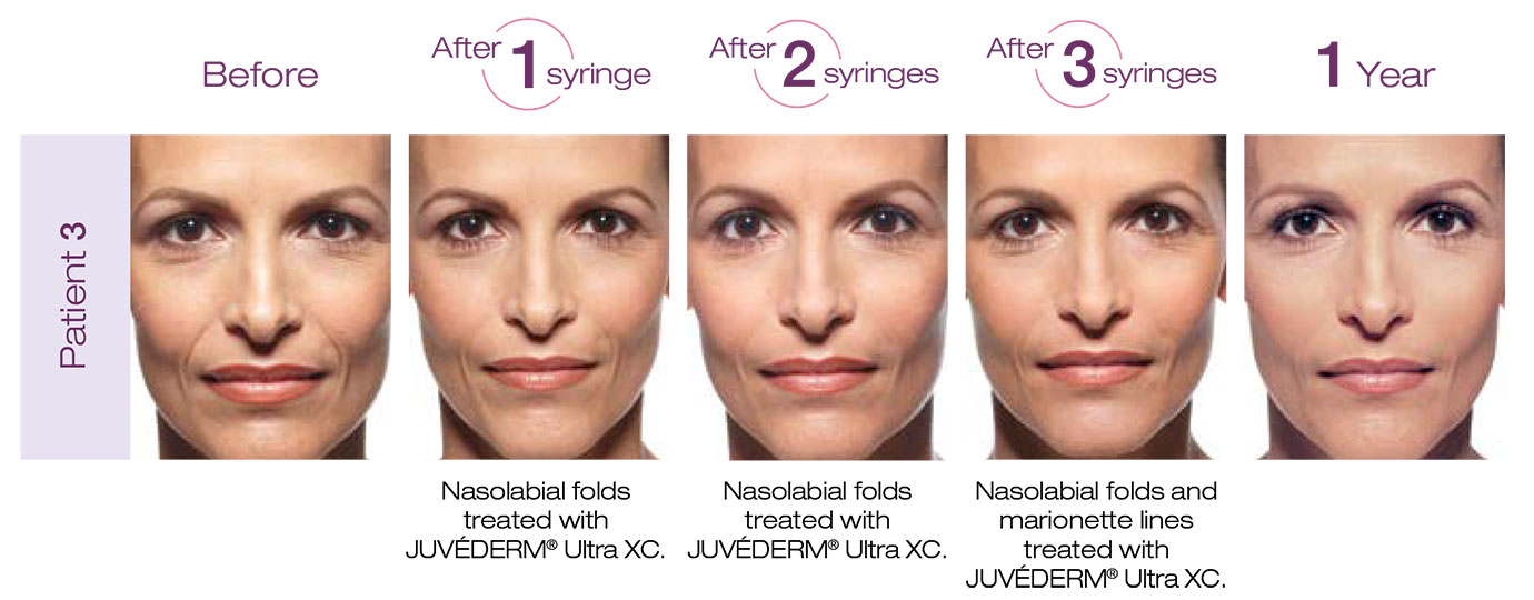 Denver Medical Spa and Skin Care Clinic Juvéderm lisa