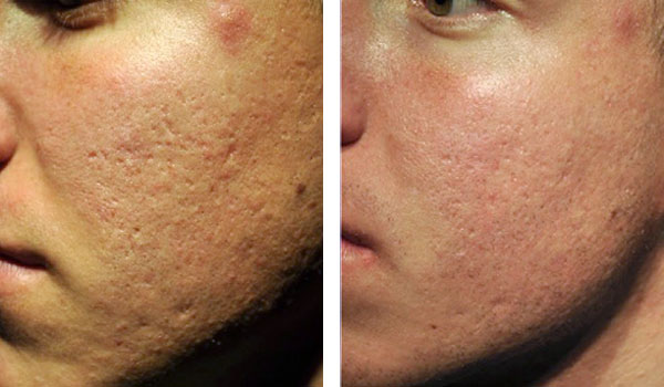 Denver Skin Care Clinic and Medical Spa Microneedling livra before after 4m treatment
