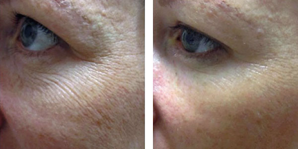 Denver Skin Care Clinic and Medical Spa Microneedling livra before after 5m treatment