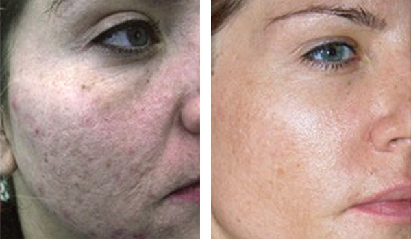 Denver Skin Care Clinic and Medical Spa Microneedling livra before after 6m treatment