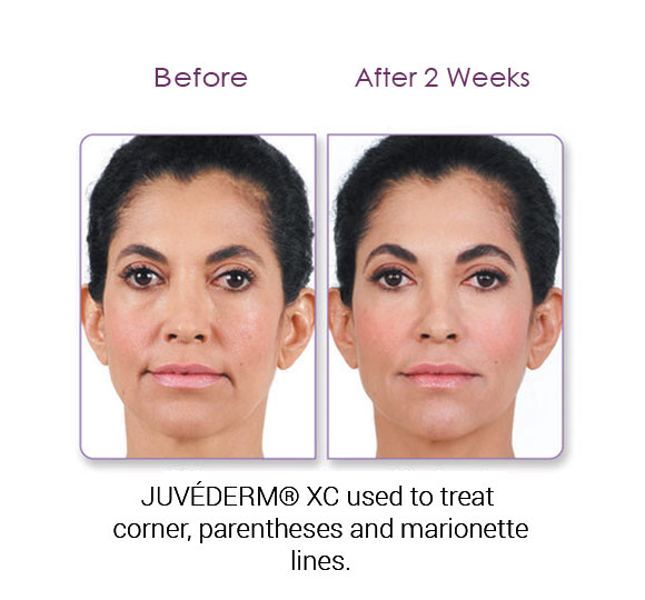 Denver Medical Spa and Skin Care Clinic Juvéderm lizette