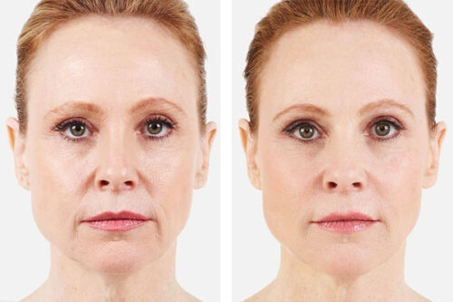 Denver Skin Care Clinic and Medical Spa JUVÉDERM juverderm treatment 500x333