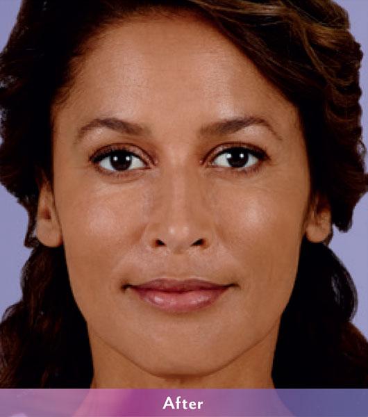 Denver Medical Spa and Skin Care Clinic Vollure ba v 2A a