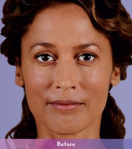 Denver Skin Care Clinic and Medical Spa ba_v_2A_b ba v 2A b 265x300
