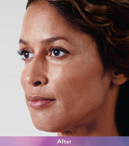 Denver Medical Spa and Skin Care Clinic Vollure ba v 2B a