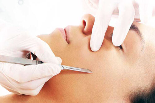 Denver Medical Spa and Skin Care Clinic Special Offers dermaplaning pro 500x333