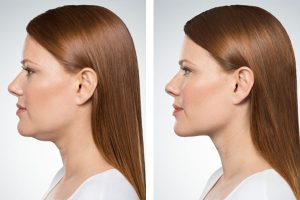 Denver Medical Spa and Skin Care Clinic kybella_treatment kybella treatment 300x200