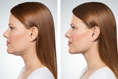 Denver Medical Spa and Skin Care Clinic Special Offers kybella treatment 500x333