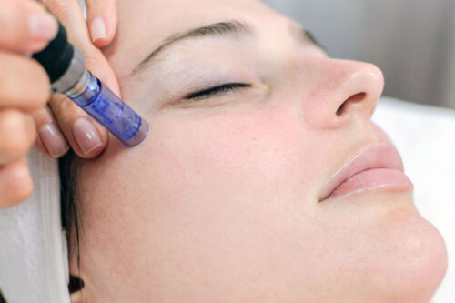 Denver Skin Care Clinic and Medical Spa Special Offers microneedling 500x333