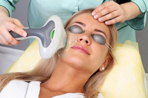 Denver Medical Spa and Skin Care Clinic photofacial_treatment photofacial treatment 300x200