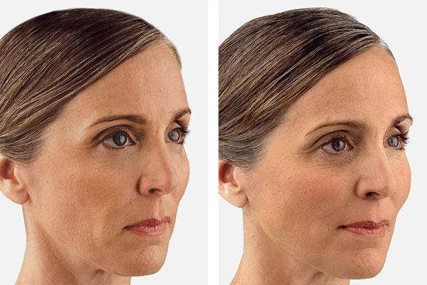Spa Bella Denver skin care | Voluma