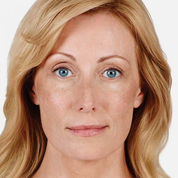 Denver Skin Care Clinic and Medical Spa Juvéderm alicia after 600x600