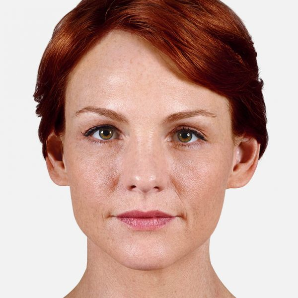 Denver Skin Care Clinic and Medical Spa Juvéderm anne before 600x600