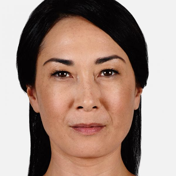 Denver Medical Spa and Skin Care Clinic Juvéderm lorna before 600x600