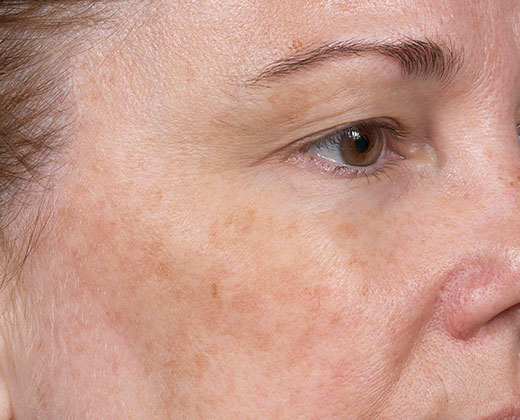 Denver Skin Care Clinic and Medical Spa Clear + Brilliant cb 2 before