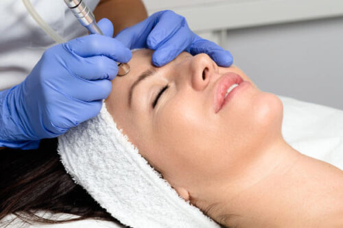 Denver Skin Care Clinic and Medical Spa Black Friday Cyber Monday Treatments microdermabrasion 500x333